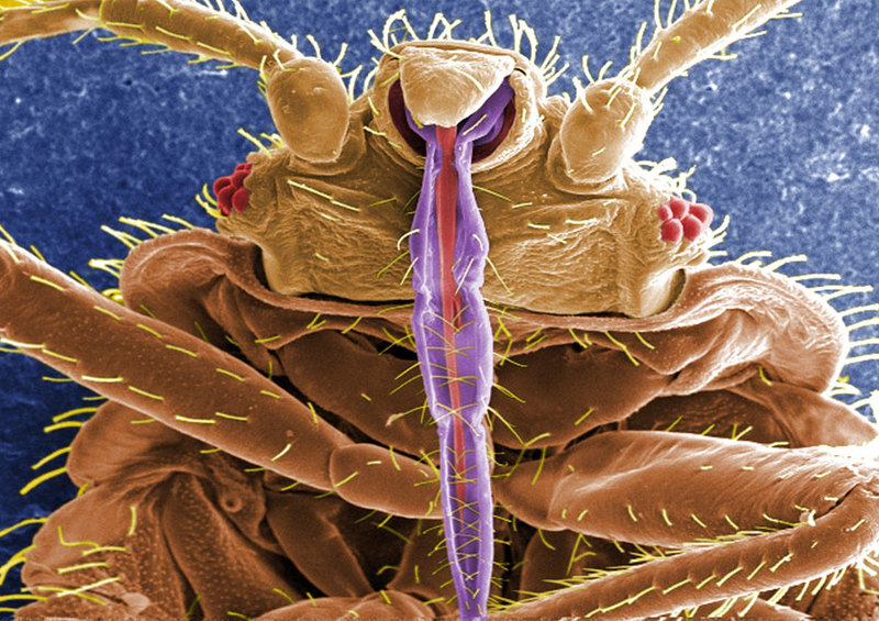 Up Close & Personal: A Bedbug Album [LiveScience 2012-03-16]; DISPLAY FULL IMAGE.