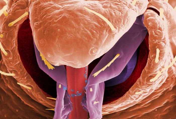 Up Close & Personal: A Bedbug Album [LiveScience 2012-03-16]; Image ONLY