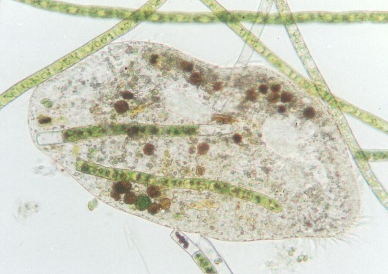 Protozoa - more ciliates - Euplotes; DISPLAY FULL IMAGE.
