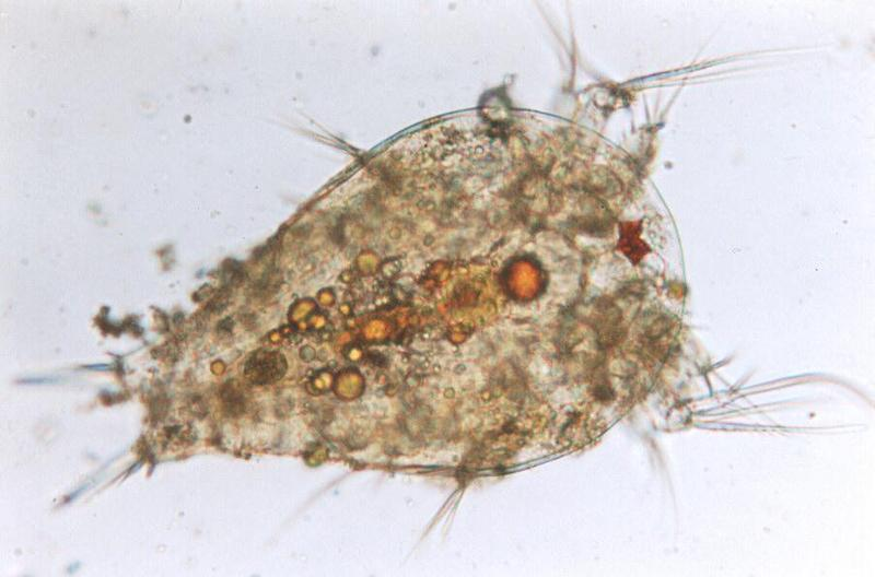 Protozoa - nauplius; DISPLAY FULL IMAGE.