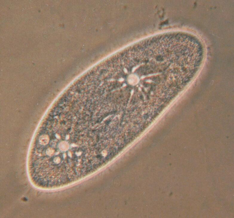 More Protozoa - The Secrets Of Paramecium Caudatum - KLEIN's silver lines; Image ONLY