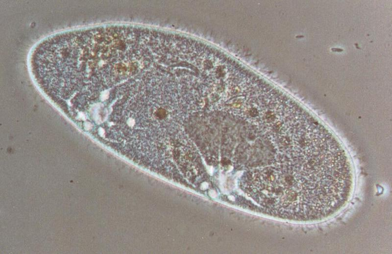 Protozoa - Paramecium caudatum take three - REPOST; DISPLAY FULL IMAGE.