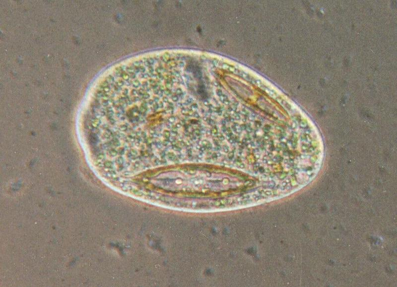 Protozoa series - REPOST #15 - Prorodon - new scans hopefully starting Friday; DISPLAY FULL IMAGE.