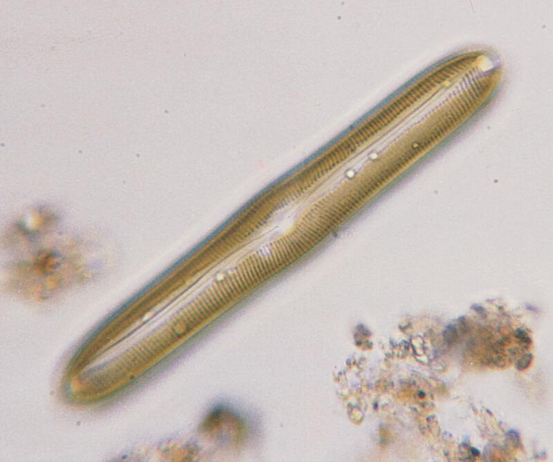 Protozoa - new scans, #2 - a hungry ciliate and its meal; Image ONLY